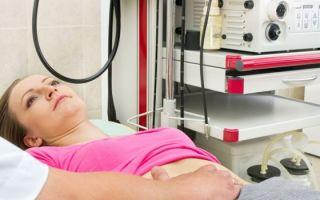 ФГДС и гастроскопия желудка без глотания зонда: альтернативные методы